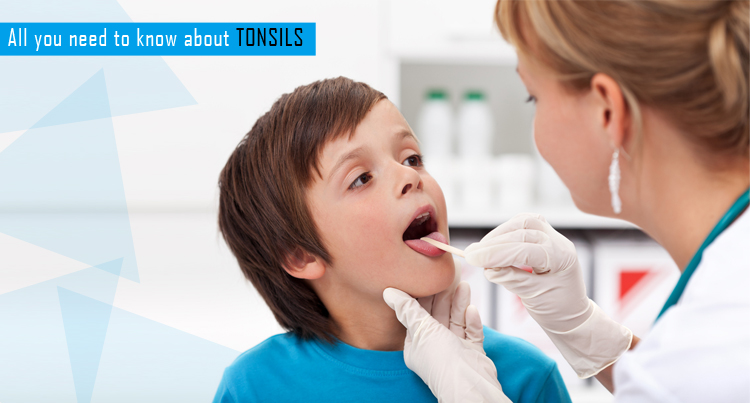 All you need to know about Tonsils